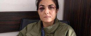 HDP: Melek derhal serbest bırakılsın
