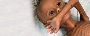 400 bin çocuk açlığın pençesinde